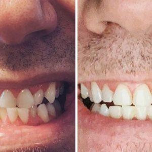 Jeremy B SmileDirectClub Before-After Photos